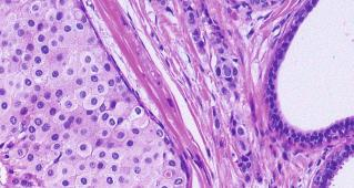 Artificial intelligence reveals new breast cancer types that respond differently to treatment