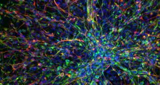 Image: Human paediatric brain tumour cells. Image credit: Valeria Molinari, Louise Howell, Maria Vinci, Katy Taylor and Chris Jones via the Wellcome Collection. Licence: CC BY NC.