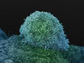 Prostate cancer cell. Credit: Anne Weston, Francis Crick Institute