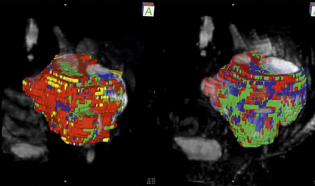 3D MRIs of sarcomas before (left) and after (right) treatment